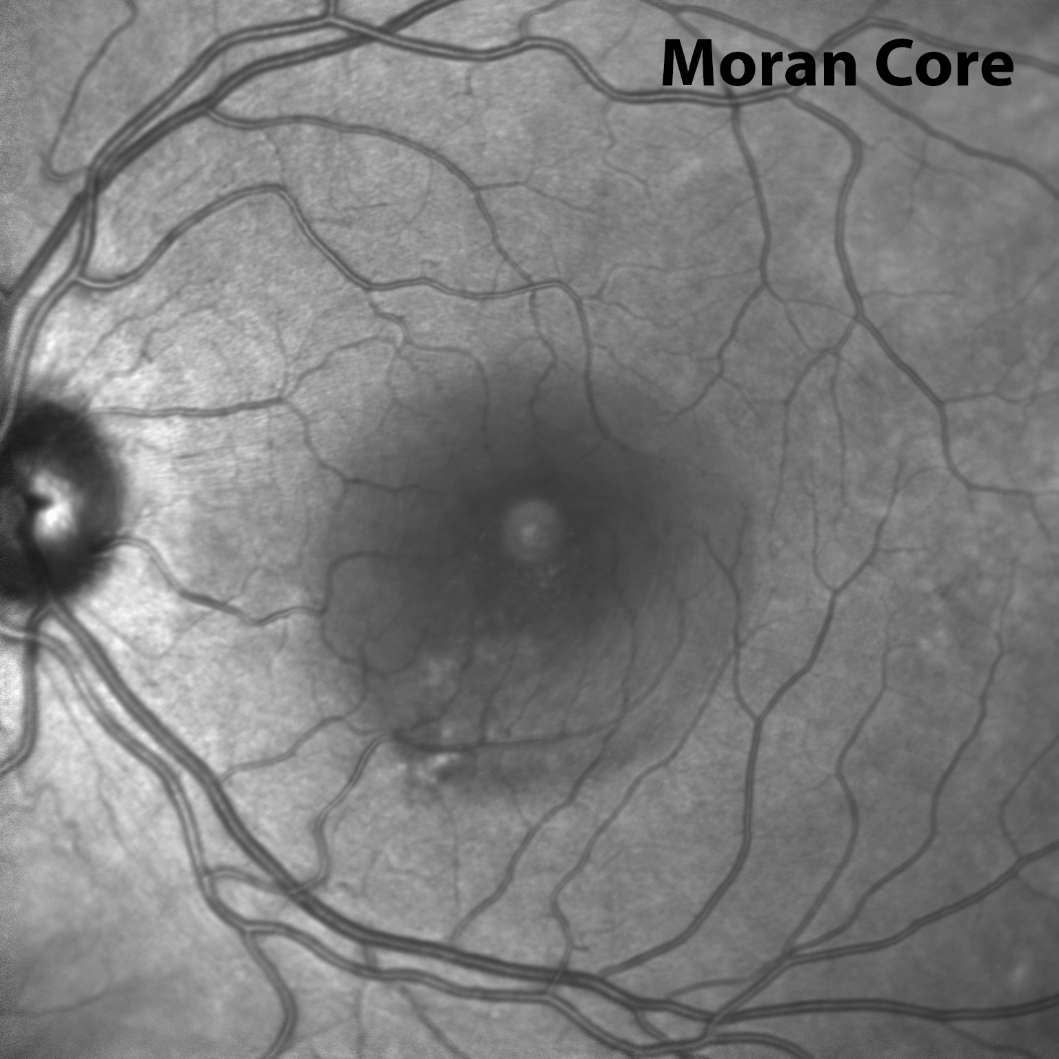 Figure 4: Left eye infrared image showing a hyporeflective area in the central macula corresponding to the area of subretinal fluid.