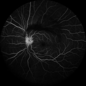 Fluorescein angiography demonstrated leakage from the optic nerve. Vitreitis was also noted.