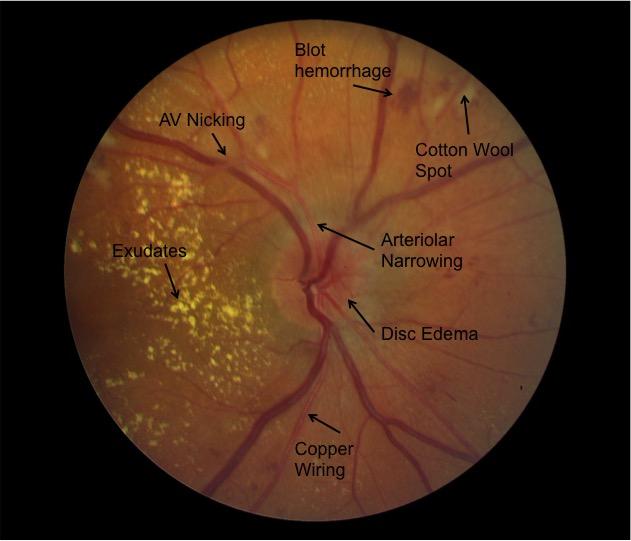 Moran CORE | Hypertensive Retinopathy