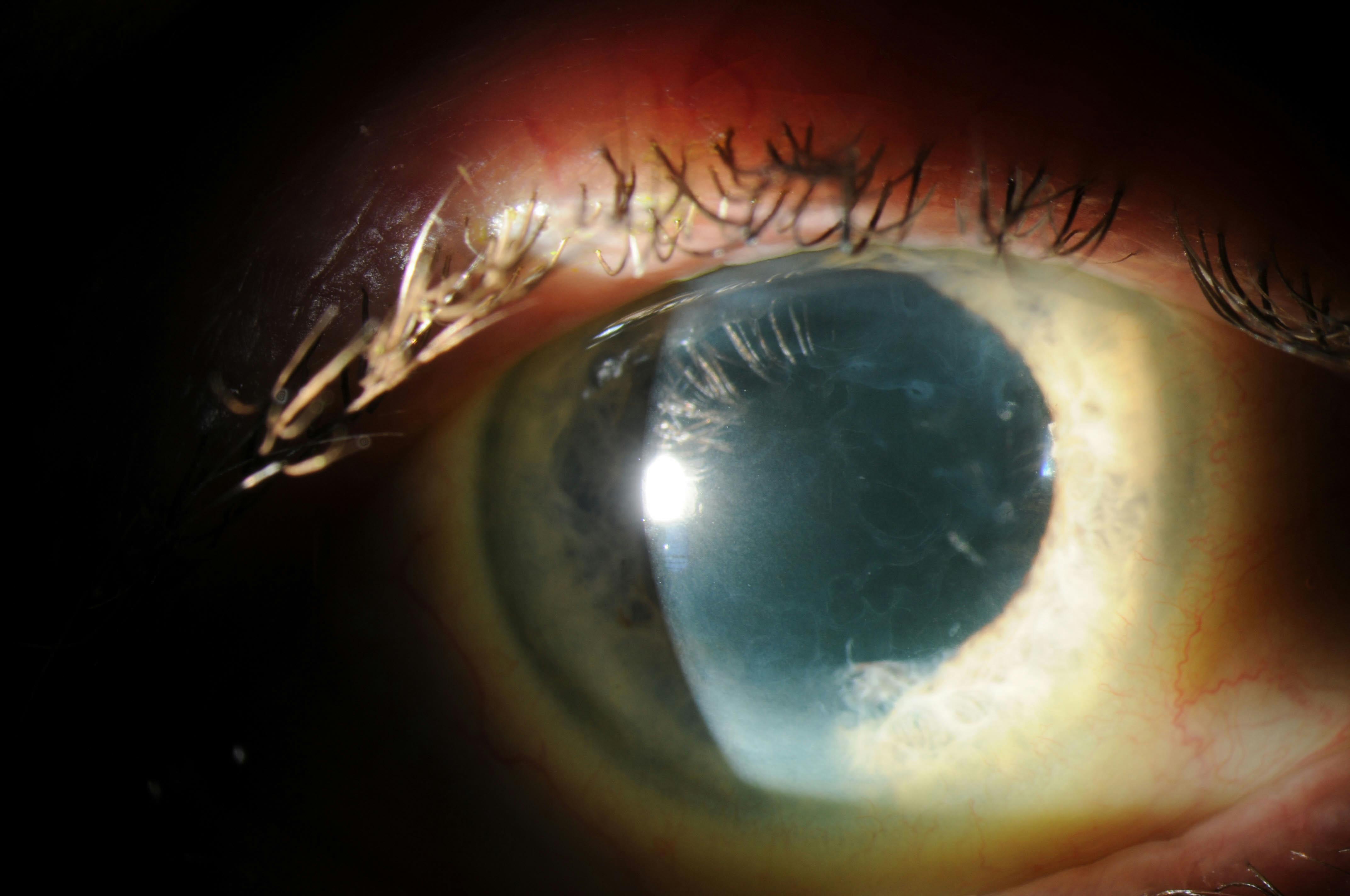 Moran CORE | Anterior Bat Membrane Dystrophy (ABMD) on macular corneal dystrophy, congenital stromal corneal dystrophy, map dot cornea, lattice corneal dystrophy type i, fleck corneal dystrophy, lisch epithelial corneal dystrophy, map dot syndrome, posterior polymorphous corneal dystrophy 2, granular corneal dystrophy type ii, map dot fingerprint treatment, map dot fingerprint disorder, map measles strains, posterior polymorphous corneal dystrophy 3, map dot atrophy, recurrent corneal erosion, map dot dysstrohy, corneal dystrophy of bowman layer, type ii, map dot fingerprint corneal epithelial, schnyder crystalline corneal dystrophy, posterior amorphous corneal dystrophy, x-linked endothelial corneal dystrophy, posterior polymorphous corneal dystrophy 1, congenital endothelial dystrophy type 2, subepithelial mucinous corneal dystrophy, gelatinous drop-like corneal dystrophy,