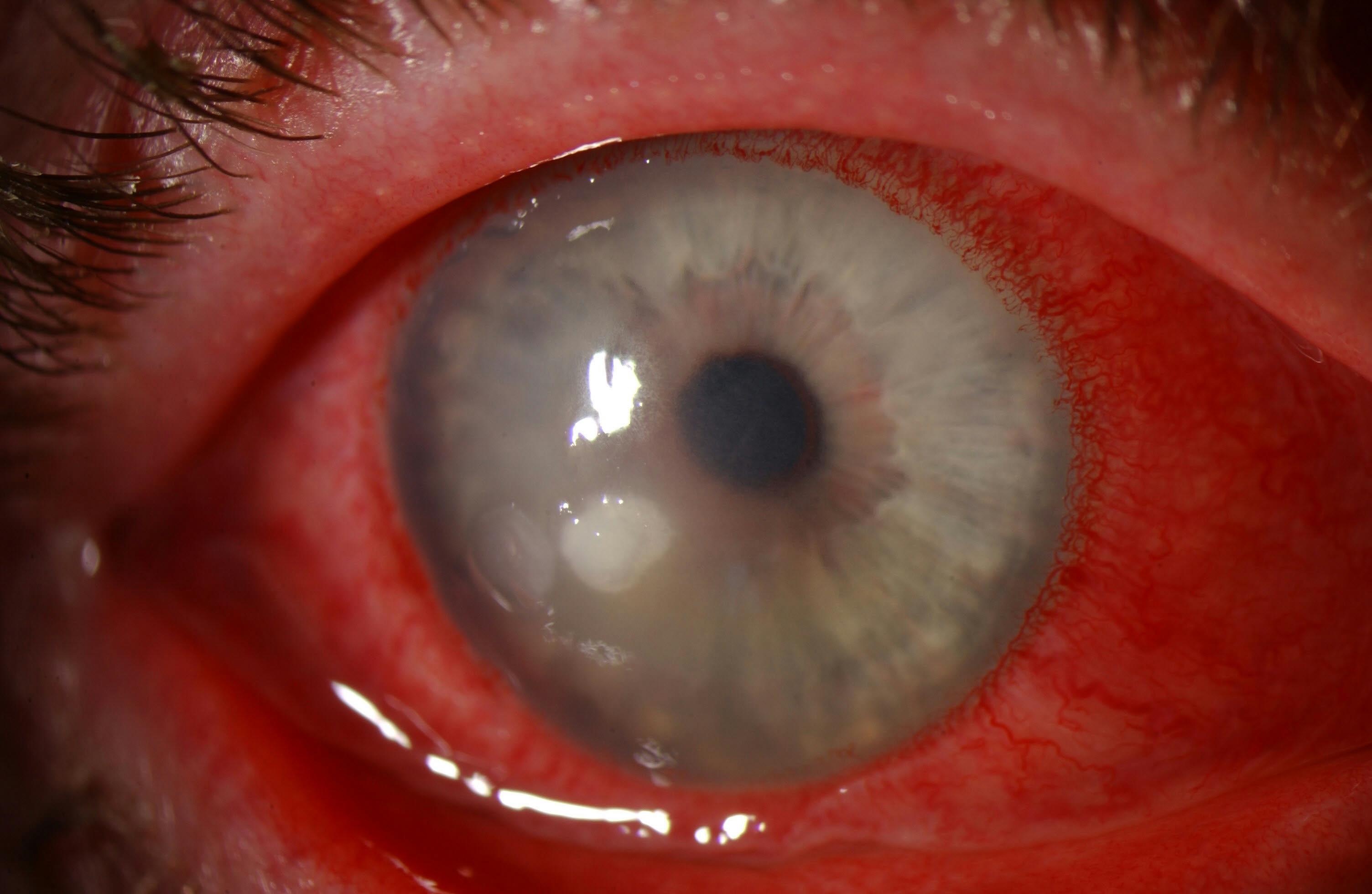 loét giác mạc: triệu chứng