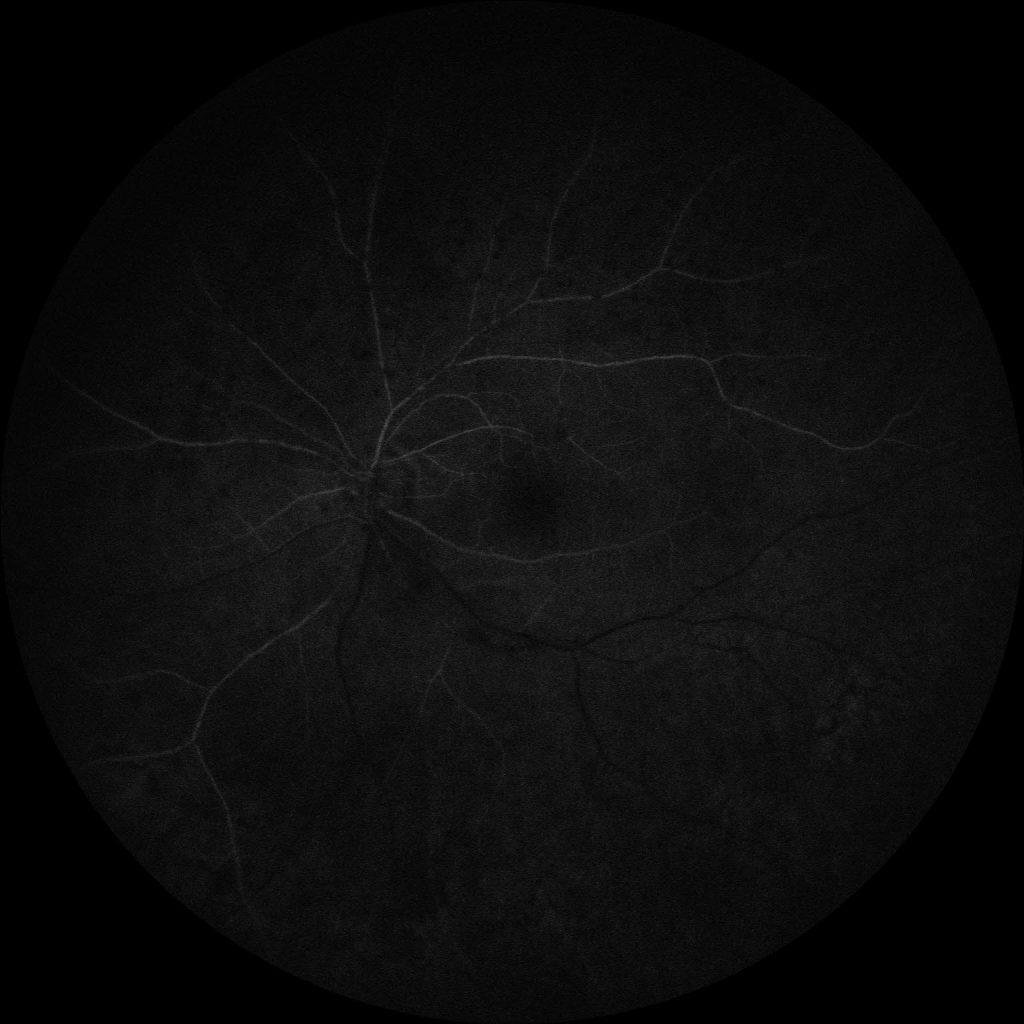 Susac's Syndrome image 21