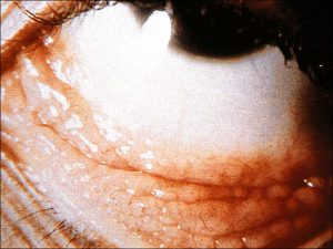 Mamalis_Conjunctiva_12_unlabeled