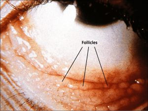 Mamalis_Conjunctiva_12_labeled