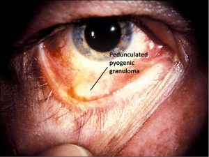 Mamalis_Conjunctiva_20_labeled