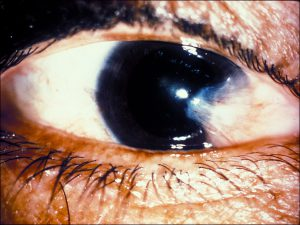 Mamalis_Conjunctiva_24_unlabeled