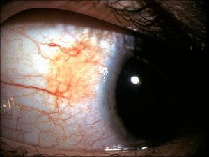 Mamalis_Conjunctiva_44_unlabeled