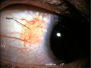 Mamalis_Conjunctiva_44_labeled