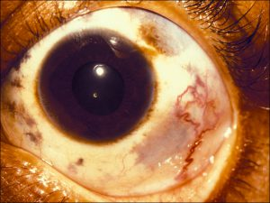 Mamalis_Conjunctiva_50_unlabeled