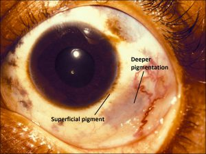 Mamalis_Conjunctiva_50_labeled