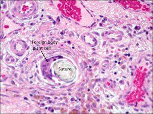 Mamalis Cellular Histo 14 labeled