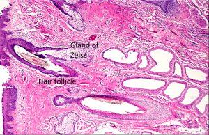 Mamalis Eyelid 11 labeled