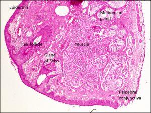 Mamalis Eyelid 14 labeled