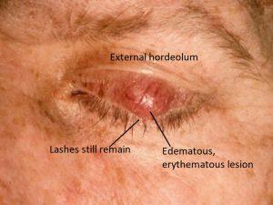 Mamalis Eyelid 15 labeled