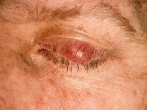 Mamalis Eyelid 15 unlabeled