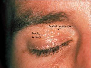 Mamalis Eyelid 18 labeled