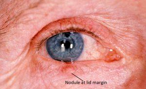 Mamalis Eyelid 21 labeled