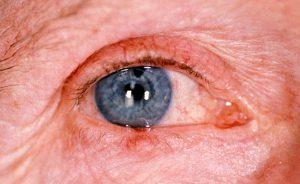 Mamalis Eyelid 21 unlabeled