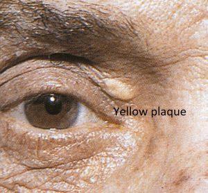 Mamalis Eyelid 25 labeled