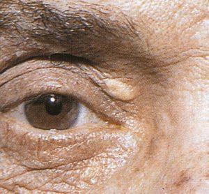 Mamalis Eyelid 25 unlabeled