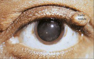 Mamalis Eyelid 27 labeled