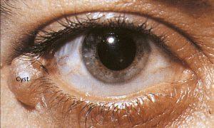 Mamalis Eyelid 32 labeled