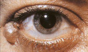 Mamalis Eyelid 32 unlabeled
