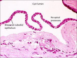 Mamalis Eyelid 33 labeled