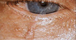 Mamalis Eyelid 35 unlabeled