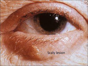 Mamalis Eyelid 43 labeled