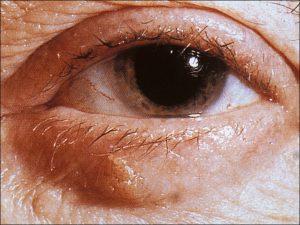Mamalis Eyelid 43 unlabeled