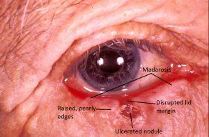 Mamalis Eyelid 46 labeled