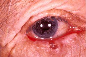 Mamalis Eyelid 46 unlabeled