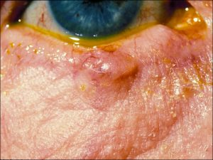 Mamalis Eyelid 47 unlabeled