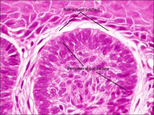Mamalis Eyelid 49 labeled