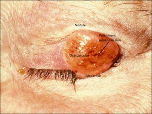Mamalis Eyelid 54 labeled