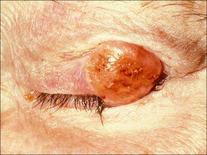 Mamalis Eyelid 54 unlabeled