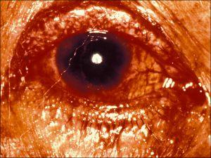 Mamalis Eyelid 60 unlabeled