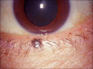 Mamalis Eyelid 65 unlabeled