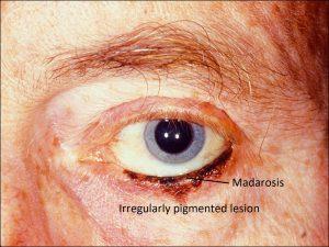 Mamalis Eyelid 68 labeled