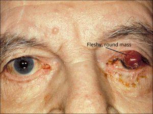 Mamalis Eyelid 73 labeled