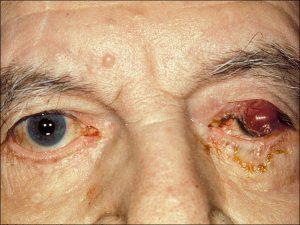 Mamalis Eyelid 73