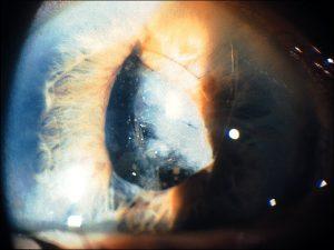 Mamalis Lens 10 unlabeled