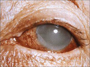Mamalis Lens 11 unlabeled