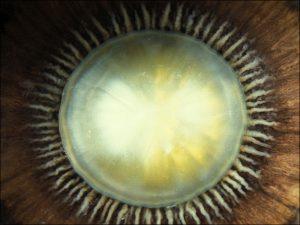 Mamalis Lens 16 unlabeled