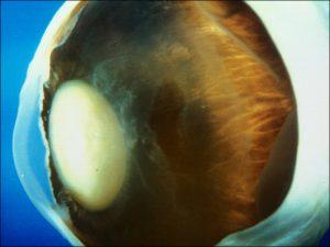Mamalis Lens 18 unlabeled