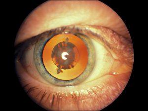 Mamalis Lens 30 unlabeled