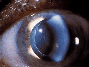 Mamalis Lens 36 unlabeled