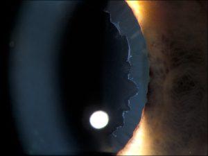 Mamalis Lens 37 unlabeled