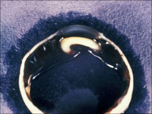 Mamalis Lens 39 unlabeled